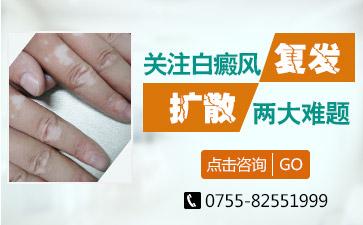 深圳老年人得了白癜风该怎么办
