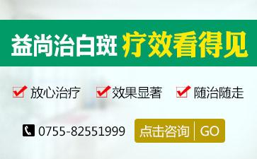 深圳女性白癜风有哪些注意事项