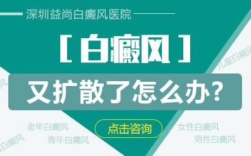 深圳老年白癜风患者如何调节心理