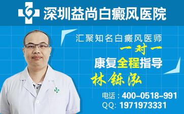 白癜风深圳医院